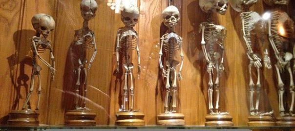 Sejarah Pembuatan The Mutter Museum Lumayan Menyeramkan